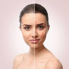 5 razões para consultar um dermatologista